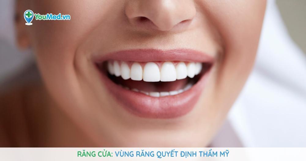 Răng cửa Vùng răng quyết định thẩm mỹ