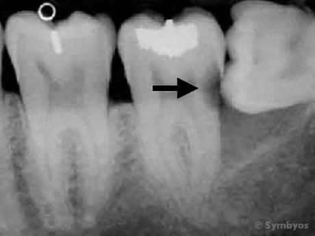 Răng khôn mọc kẹt