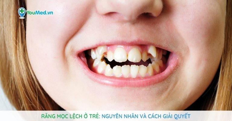 Răng mọc lệch ở trẻ: Nguyên nhân và cách giải quyết