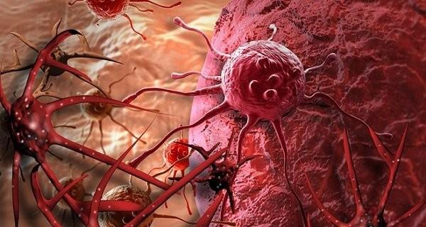 Hầu hết các loại Sarcoma mạch máu là không rõ nguyên nhân.