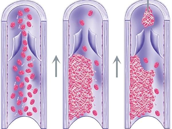 Tắc mạch do huyết khối
