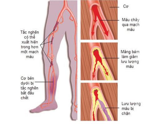 Tắc nghẽn mạch máu