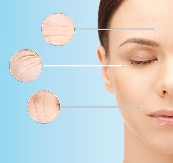 Thiếu collagen dẫn đến lão hóa da