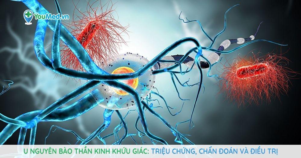 U nguyên bào thần kinh khứu giác Triệu chứng, chẩn đoán và điều trị