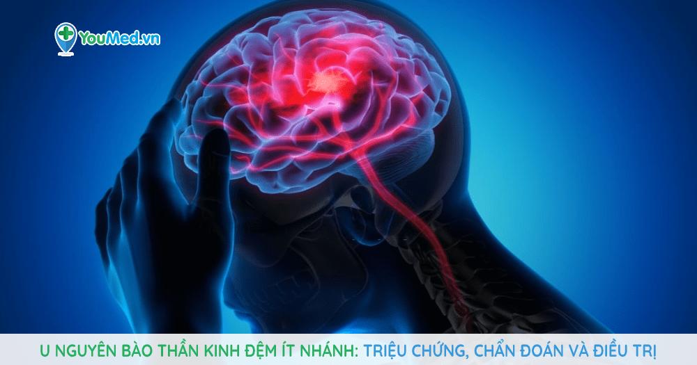 U nguyên bào thần kinh đệm ít nhánh là gì?