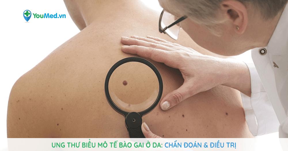 Ung thư biểu mô tế bào gai ở da: nguy cơ và cách phòng ngừa