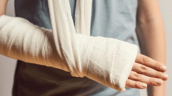 Cánh tay bị gãy xương trụ phải bó bột