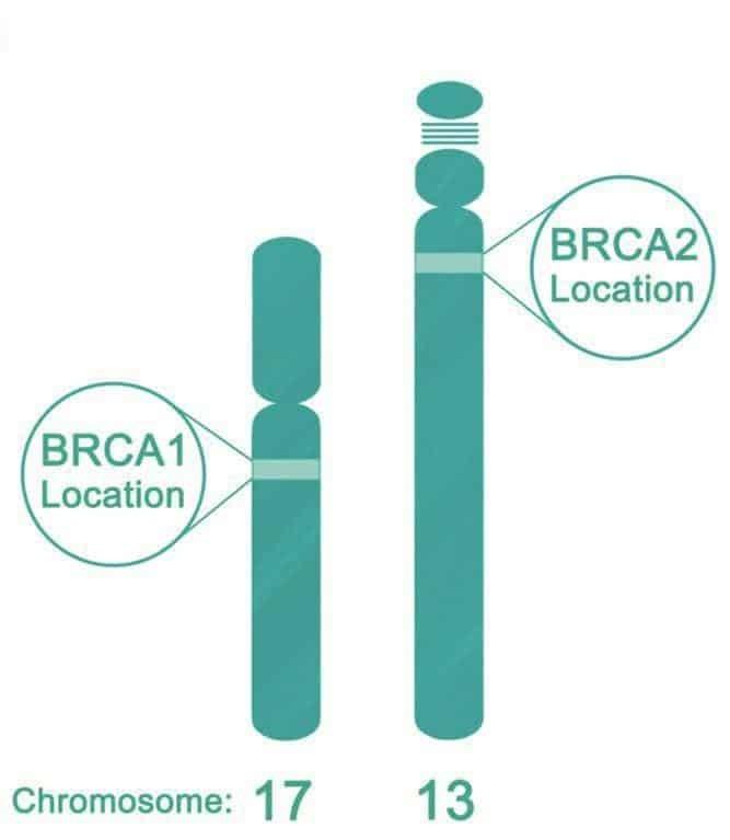 Vị trí gen BRCA 1 và 2
