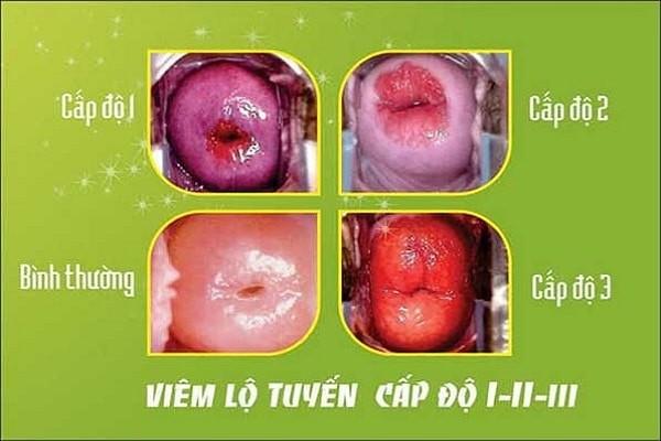 Nên thận trọng sinh thiết khi có viêm nhiễm cổ tử cung