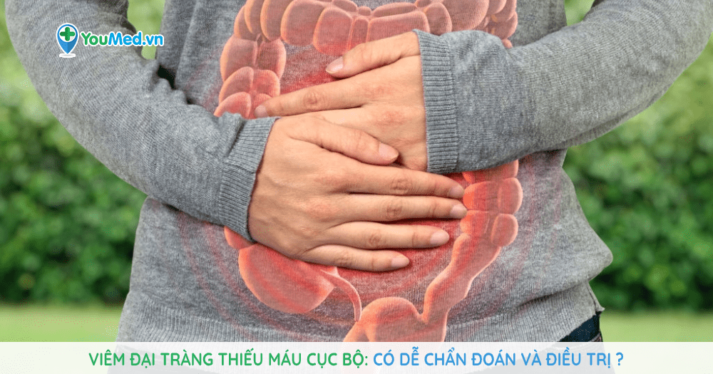 Viêm đại tràng thiếu máu cục bộ có dễ chẩn đoán và điều trị