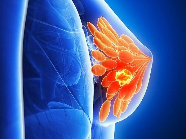 Ý nghĩa xét nghiệm CA 15-3 trong ung thư vú