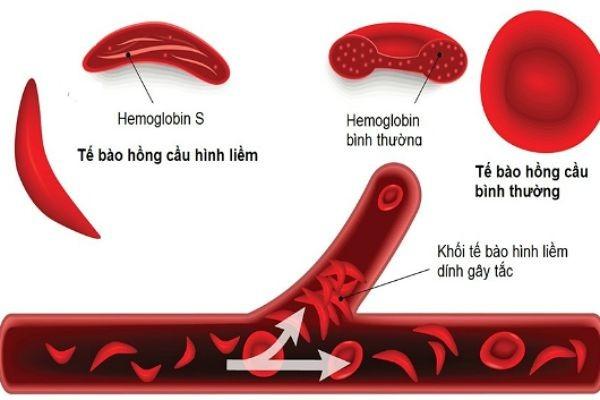 bổ sung kẽm cho người bị bệnh hồng cầu hình liềm