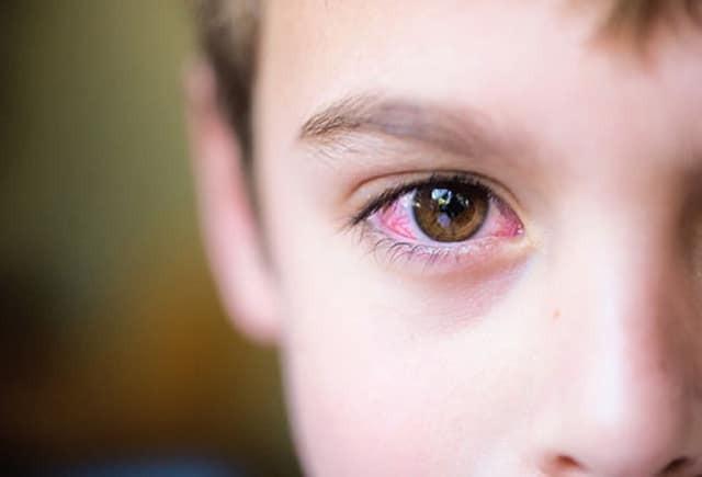 Mắt của bạn có thể bị đỏ do tác dụng của thuốc