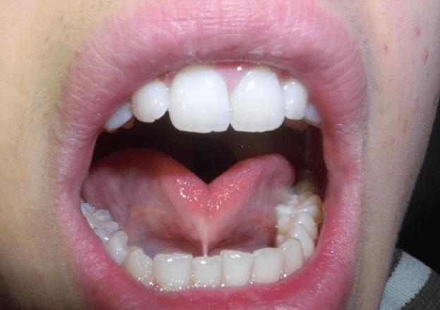 Hình ảnh bệnh cứng lưỡi ở trẻ em