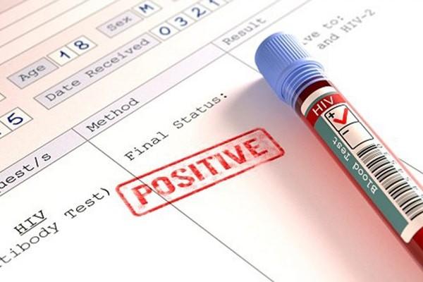 Xét nghiệm máu là tốt nhất để xác định tình trạng nhiễm HIV