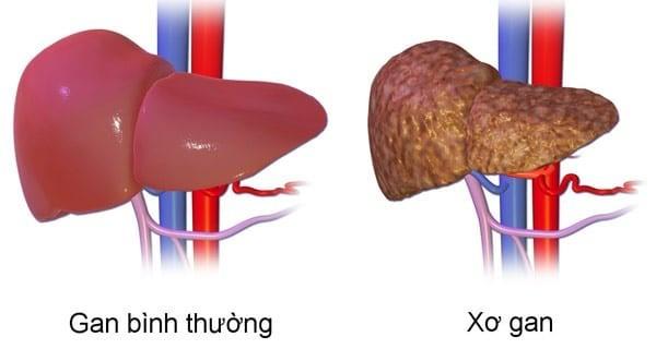 Dược liệu có thể điều trị xơ gan