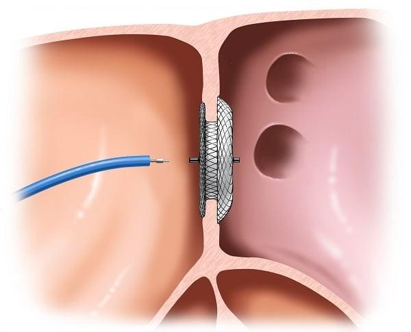 Điều trị can thiệp tim mạch bằng catheter có thể giúp sửa chữa dị tật thông liên nhĩ