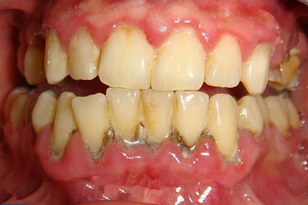 Viêm chân răng là một bệnh lý răng miệng nghiêm trọng