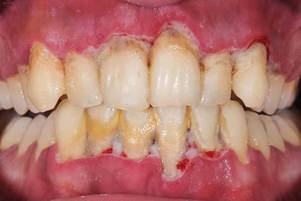 Viêm nướu có thể dẫn đến chảy máu chân răng