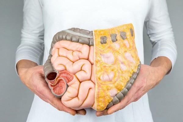 Mỡ nội tạng