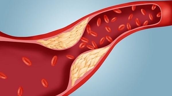 Bệnh tăng cholesterol máu làm tăng nguy cơ tim mạch
