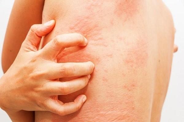 ngứa da sau khi đi bơi