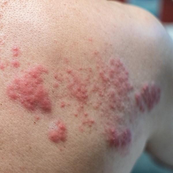 Các sẩn, mảng hồng ban kèm mụn nước là triệu chứng thường gặp của bệnh.