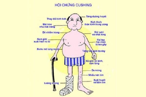 Hội chứng Cushing