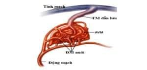 dị dạng mạch máu tủy sống