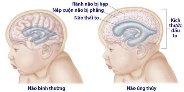 Bệnh có thể dẫn đến biến chứng là não úng thủy