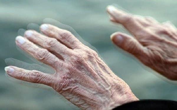 Run chi trong bệnh Parkinson