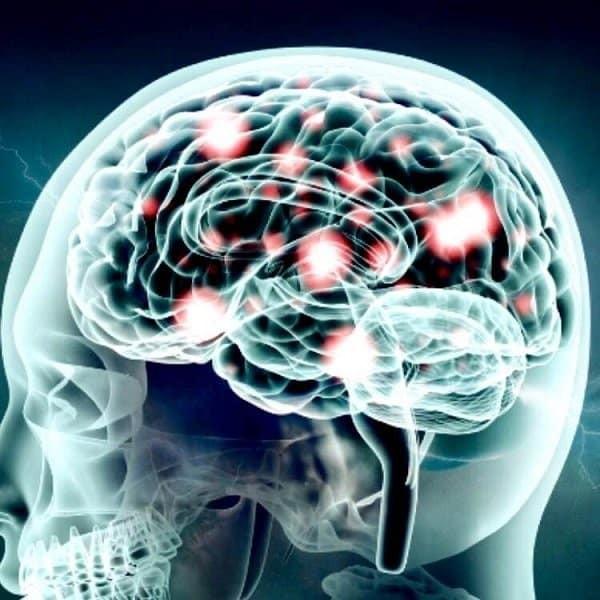 Dopamine và bệnh tâm thần phân liệt