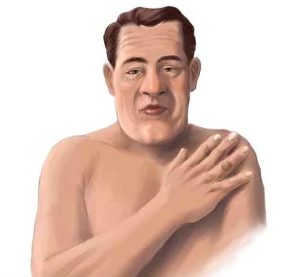 Gương mặt và bàn tay của bệnh nhân mắc bệnh to đầu chi