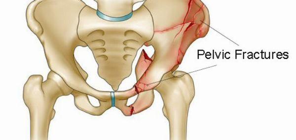 Chẩn đoán gãy xương hông thông qua chụp X-quang