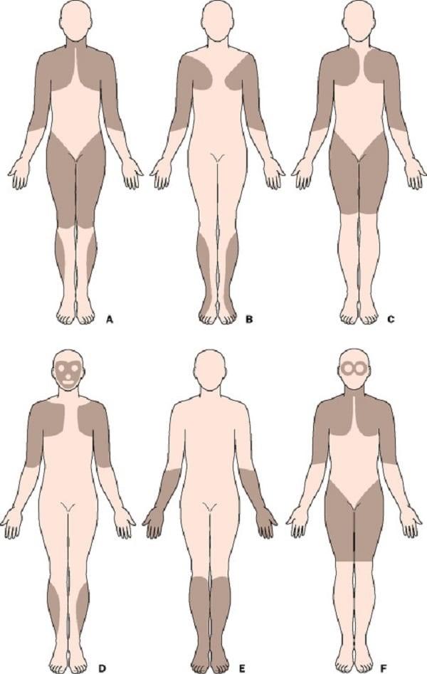Những vùng cơ có thể bị ảnh hưởng do bệnh loạn dưỡng cơ