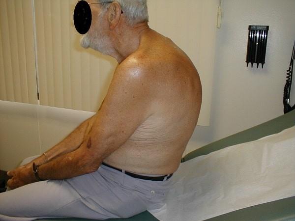 Gù cột sống ở một bệnh nhân lớn tuổi