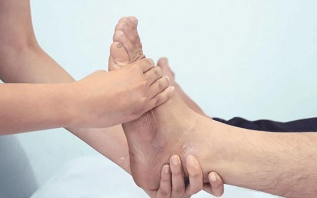 Hội chứng Klippel-Trenaunay gây ra các vấn đề về tĩnh mạch