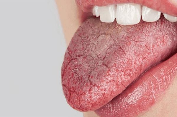 Khô miệng là một trong hai triệu chứng thường gặp nhất
