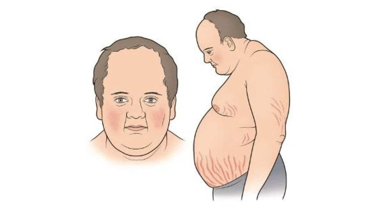 mức cortisol cao gây hội chứng Cushing