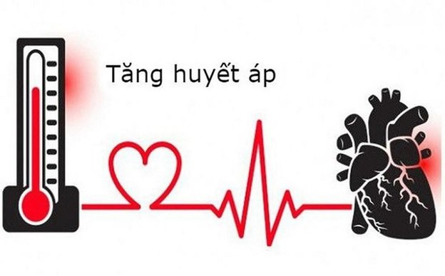 Nhịp tim quá chậm hoặc quá nhanh cũng là triệu chứng của suy nút xoang