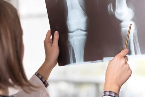Chụp X quang khớp gối