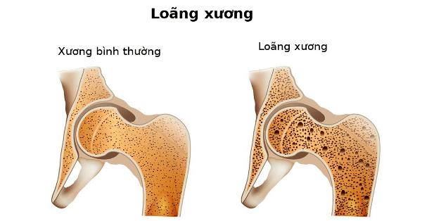 Loãng xương là một trong các biến chứng của cường tuyến cận giáp