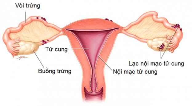 Có thể dùng thuốc tránh thai trong điều trị lạc nội mạc tử cung