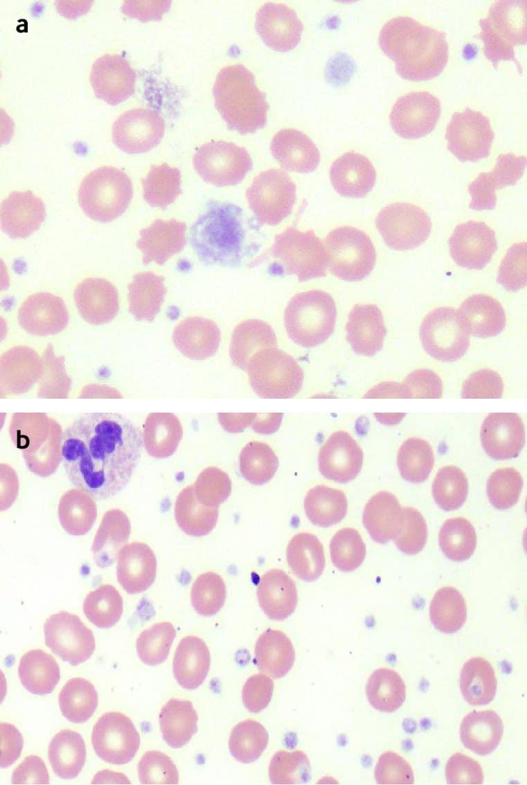 máu bình thường và tăng tiểu cầu (các chấm tím nhỏ tăng số lượng)