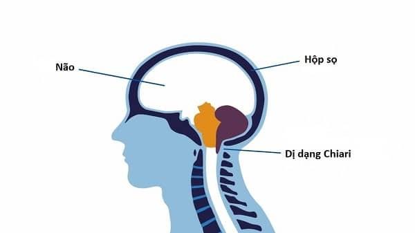 Dị dạng Chiari do một phần não bị tụt xuống khoang tủy