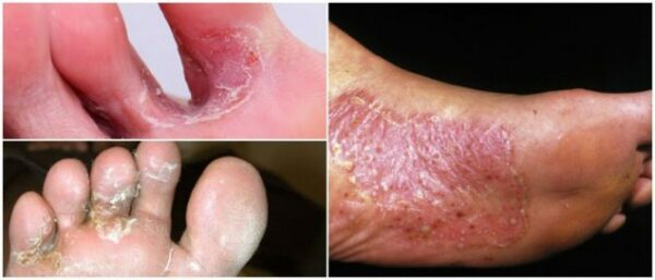 nấm da chân