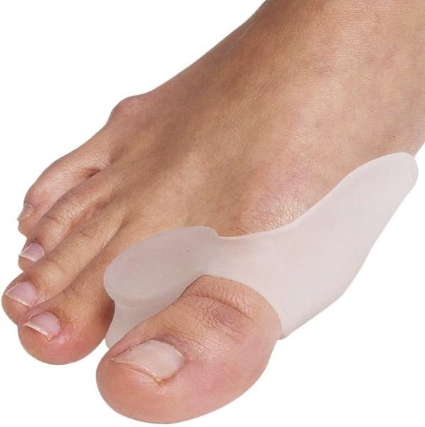 Nẹp chỉnh hình trong biến dạng ngón chân cái