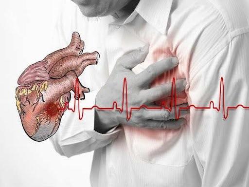 Có nhiều nguyên nhân dẫn đến ngưng tim đột ngột
