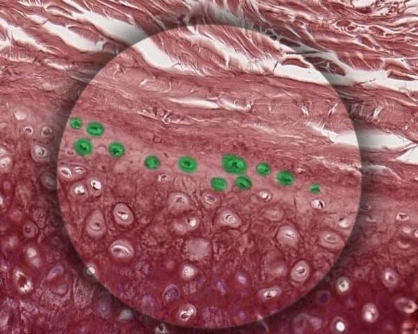 nguyên bào sụn