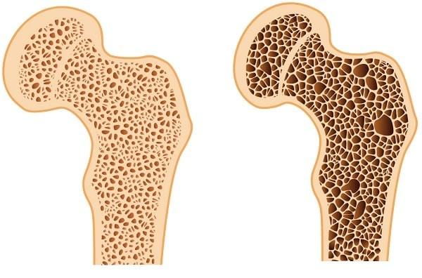 Xương khỏe mạnh (bên trái) và loãng xương (bên phải)